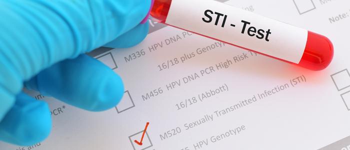 wo auf geschlechtskrankheiten testen lassen